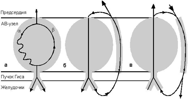 Схема re-entry: а - ПРАВУТ